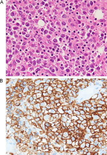 Histological and immunohistochemical examination of the resected specimen of the left buttock. (A) Hematoxylin and eosin (H–E) staining revealed diffuse infiltration with large atypical lymphoid cells with prominent nucleoli (×400). (B) CD20 immunohistochemical staining demonstrated the presence of large atypical lymphoid cells on the membrane (×400).