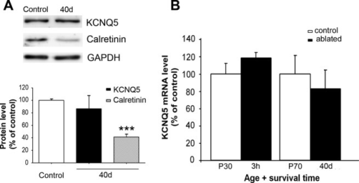 Analysis of the KCNQ5 protein and mRNA levels in the CN after cochlear ablation. A: Western blots show levels of KCNQ5 and calretinin in the CN extracts from unmanipulated controls and rats 40 days after bilateral cochlear ablation (40d). Detection of GAPDH was included as a loading control. No significant differences were found in KCNQ5 protein density 40 days after cochlear removal compared with the controls (P70). Calretinin expression levels were significantly reduced. Values are expressed as the relative fold change percentage compared with the controls. B: KCNQ5 mRNA expression levels in the CN of the unmanipulated control rats and the rats in which the cochleae had been removed. Quantitative real-time RT-PCR showed no significant differences in the relative levels of KCNQ5 mRNA between control rats and rats 3 hr (3h) and 40 days (40d) after cochlear ablation (P > 0.05). Bars represent mean ± SEM of nine independent determinations. ***P < 0.001.