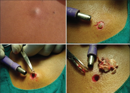 epidermal inclusion cyst extrusion | open-i