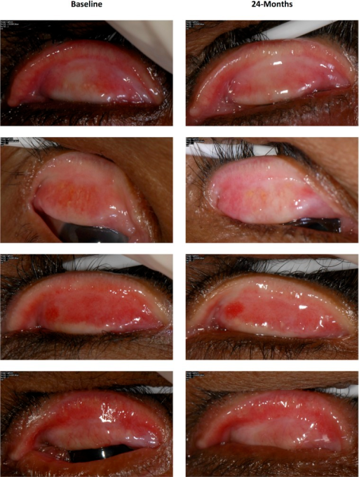 Examples of paired photographs from individuals showing signs of increasing upper tarsal conjunctival scarring between baseline and 24-months.
