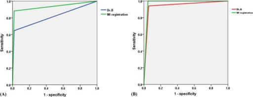 Receiver operating characteristic (ROC) curves of different measurements.(A) ROC curves of radiologist B and MI registration when the measurement of radiologist A was used as the standard. (B) ROC curves of radiologist A and MI registration when the measurement of radiologist B was used as the standard.
