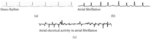 Surface electrocardiogram shows sinus rhythm (a) with organized atrial electrical activity and contraction following impulse formation from the sinus node. There is a one-to-one relationship between atrial (p wave) and ventricular depolarization (QRS) with normal electrical conduction. However, atrial fibrillation (b) is associated with rapid, chaotic atrial electrical activity with variable ventricular conduction. Intracardiac recording of atria (c) shows disorganized electrical activity.