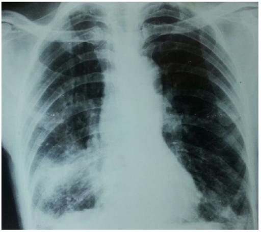 Chest X-ray with minimally advanced lesion.