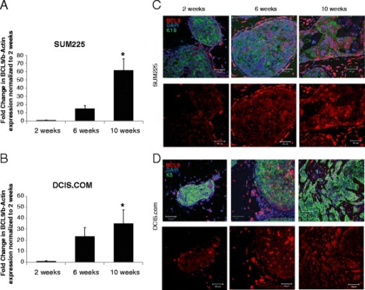 Enhanced BCL9 nuclear expression in DCIS cell line MIND xenografts that progressed to invasive lesions. a, b RT-qPCR of BCL9 in epithelial cell adhesion molecule (EpCAM)-positive epithelial cells sorted from SUM225 (a) and DCIS.COM (b) MIND xenografts at 2, 6, and 10 weeks post-intraductal injection. Bar graphs represent fold change normalized to 2 weeks. Data are mean values ± standard error of the mean (n = 3, *p <0.05). c, d Immunofluorescent (IF) staining of BCL9, keratin (K)5/K19, and 4′,6-diamidino-2-phenylindole (DAPI) in SUM225 (c) and DCIS.COM (d) MIND xenografts at 2, 6, and 10 weeks post-intraductal injection; merged channels are shown in the upper panels and BCL9-only channels are shown in the lower panel. BCL9 was conjugated to Alexa-Fluor 594 (red) and keratin 5/keratin 19 were conjugated to Alexa-Fluor 488 (green). Nuclei were counterstained with DAPI. Scale bars are 50 μm; × 40 objective was used
