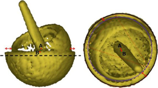 Lateral (left) and true anterior–posterior of the acetabular cup (right) views of a three-dimensional model of the patient's MoM resurfacing. A is the acetabular centre of rotation and B is the femoral head centre of rotation. The red arrows indicate that the femoral head is not centred in the acetabulum, which suggests CSM