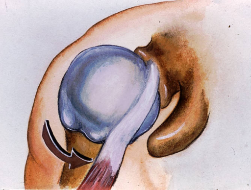 head of humerus; biceps tendon, long head; coracoid process; glenoid fossa; superior glenoid labrum