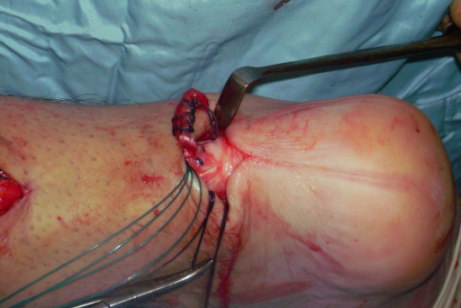 The other extremity of the semitendinosus tendon is then passed again    Semitendinosus Tendon