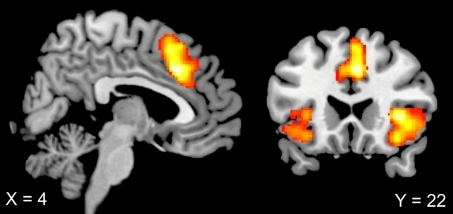Sagittal and coronal view of error-specific brain activations in both contexts (duo and solo). Increased activation in pMFC (4, 22, 36) and bilateral insula (36, 20, 2; −42, 18, −10) was evident for erroneous compared with correct responses. Thresholded at T = 3.36, corrected for multiple comparisons at the cluster level