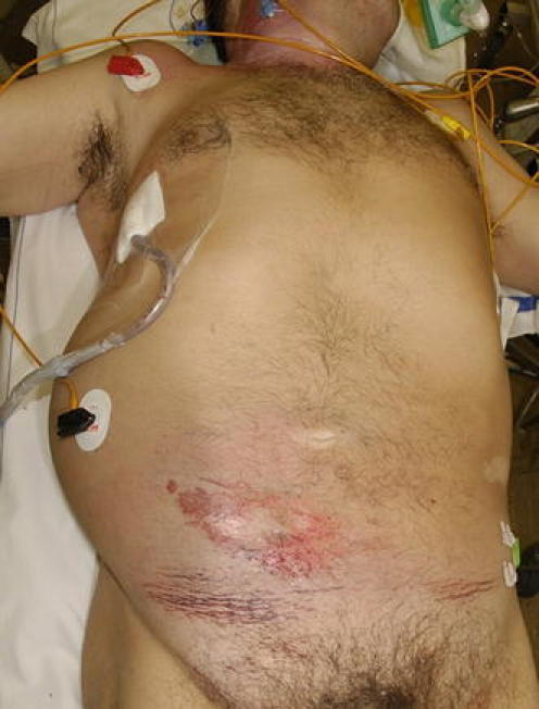 Patient after blunt abdominal trauma with swelling of the right hemi-abdomen