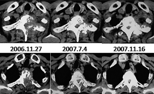 Changes to the vertebral lesions after zoledronic acid monotherapy. The first (upper images) and second (lower images) vertebrae are shown.