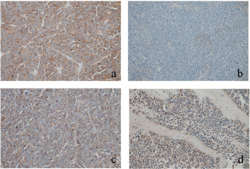 Immunohistochemical expression for neuroendocrine markers in primary tumor (Case 1). a) Synaptophysin, b) chromogranin A, c) CD56, d) neuron-specific enolase. Tumor cells variably expressed neuroendocrine markers.