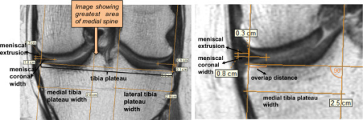 Example of measurements on mid-coronal 3 T intermediate weighted knee MR images using eFilm 3.4 software (the vertical lines are supporting lines perpendicular to the tibial plateau created to aid measurements).