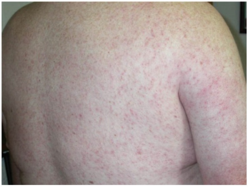 West nile viurs rash photograph