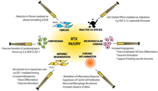 Schematic diagram demonstrating the effects of radiotherapy (RTX)-injury on individual cellular components, the resulting clinical manifestations of injury and the mechanisms by which fat graft may ameliorate this soft-tissue injury. Normal Human Dermal Fibroblasts (NHDF), extracellular matrix (ECM), hepatocyte growth factor (HGF), interleukin-12 (IL-12), blood endothelial cell (BEC), adipose-derived stem cell (ADSC), stromal derived factor-1 (SDF-1), lymphatic endothelial cell (LEC), interleukin-8 (IL-8), vascular derived growth factor-D (VEGF-D), and insulin-like growth factor-1 (IGF-1).