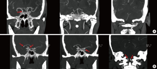 Representative patient categorization based on the number of intracranial arterial calcifications. One calcification is shown in the terminal segment of the right internal carotid artery. This case was assigned to the low calcification burden group. Five calcifications are shown in the right middle cerebral artery, the right and left terminal internal carotid, and the distal vertebral arteries. This case was assigned to the high calcification burden group.