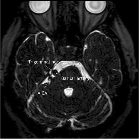 MRI showing right-sided neurovascular contact between t | Open-i