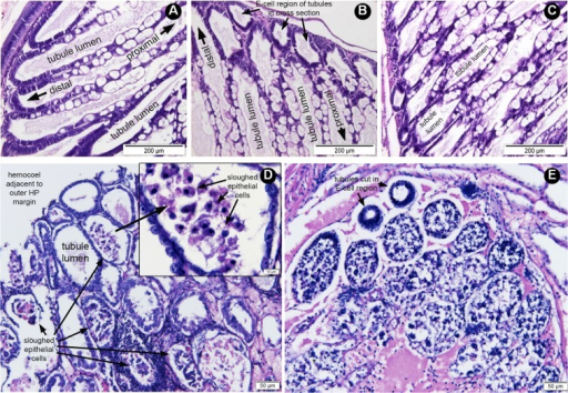 Examples of histopathological sections of hepatopancreatic (HP) tissue from moribund shrimp treated by reverse gavage with 60% AS fractions from V. parahaemolyticus isolates.(A) A longitudinal section of HP tissue from pre-challenged shrimp showing normal histology with the lumens enclosed by epithelial cell layers comprised of non-vacuolated deeply basophilic (purple stained), embryonic cells (E-cells) at the distal end of the tubule that progress in the proximal direction into a mixture of B-cells with large, single vacuoles, R-cells with multiple vacuoles and F-cells that are non-vacuolated and deeply basophilic. (B) A section of normal HP tissue from the PBS negative control shrimp showing normal tubules mostly in longitudinal section except for a few tubules at the outer (distal) portion of the HP where they are cut in cross-section. The tubule lumens are surrounded by epithelial cells similar to those in (A). (C) Tangential section of HP tissue from shrimp treated with non-AHPND S02 preparation and showing normal HP and showing the same cell types as in (A) and (B). (D) Section HP tubules (mostly in cross-section) from shrimp treated with 5HP preparation and showing AHPND pathology characterized by absence of normal epithelia containing B-cells, R-cells and F-cells as seen in (A) to (C) and instead by massive sloughing of epithelial cells into tubule lumens in the absence of bacteria. The inset shows a magnification of the sloughed epithelial cells in a tubule lumen. (E) Section of HP tubules (cross-section) from shrimp treated with CN preparation and showing AHPND pathology similar to that in (D) but more severe in that all of the tubule lumens are completely filled with sloughed cells except for two tubules cut in cross-section through the E-cell region.