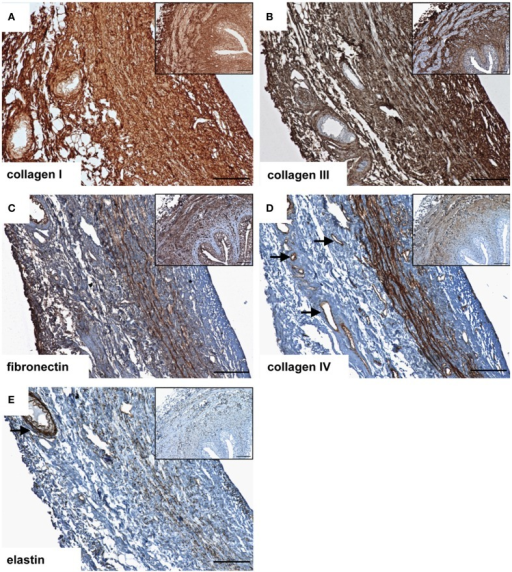 Immunohistochemical DAB-staining of decellular porcine ureteral scaffolds for collagen I (A), collagen III (B), fibronectin (C), collagen IV (D), and elastin (E) in comparison to natural tissue (small pictures). Decellular ureteral scaffolds were shown to maintain native extracellular matrix composition. The arrows mark vessels. Bar = 100 μm.