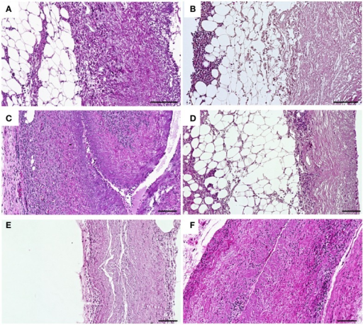 Histological analysis of HE-stained subcutaneous implanted untreated (A,C,E) and CDI crosslinked scaffolds (B,D,F) explanted at days 1, 9, and 30 post-operative. At day 1 post implantation, cellular infiltration with granulocytes, fibroblasts, and macrophages could be observed in untreated scaffolds (A), whereas in CDI crosslinked scaffolds (B) only a cellular layer was detectable at the periphery. At day 9 post implantation, a notable increase of infiltrating cells into untreated scaffolds (C) was detected as a sign of encapsulation. CDI crosslinked (D) scaffolds showed a mild cellular infiltration with granulocytes, fibroblasts, and macrophages. At day 30 post implantation, in contrast to the untreated scaffold group (E), CDI crosslinked scaffolds (F) showed only a marginal cellular infiltration by granulocytes, fibroblasts, and macrophages. Untreated scaffolds were completely infiltrated by cells and largely degraded. Detailed cellular analysis is displayed in Figure 8. Bar = 100 μm.