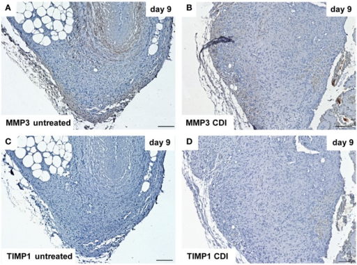Immunohistochemical DAB-staining of decellular CDI crosslinked implants for MMP3 and TIMP1 in comparison to chemical untreated scaffolds after 1, 9, and 30 days in vivo (n = 6/day/group). Nine days post-implantation, the rate of MMP3 [untreated: (A), CDI: (B)] reactivity increased compared to post-operative day 1. TIMP1 reactivity could not be detected in both untreated (C) and crosslinked (D) scaffolds.