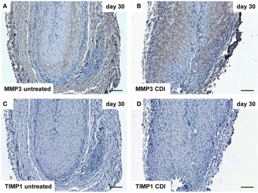 Immunohistochemical DAB-staining of decellular CDI crosslinked implants for MMP3 and TIMP1 in comparison to chemical untreated scaffolds after 1, 9, and 30 days in vivo (n = 6/day/group). At day 30 post implantation, MMP3 could be detected in both groups [untreated: (A), CDI: (B)], whereas TIMP1 was not detectable in both untreated (C) and CDI crosslinked (D) scaffolds. Bar = 100 μm.