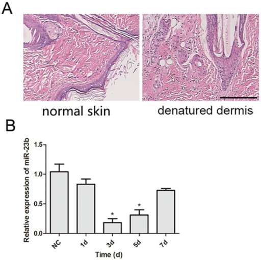 Histological examination of denatured dermis and the expression of miR-23b in denatured dermis.(A) HE staining of denatured dermis 3 days following heat damage revealed nucleus pyknosis of the epidermal and follicular epithelial cells, disintegration of the sebaceous gland, and swelling and fusion of collagen compared to normal skin. (B) The relative expression level of miR-23b was examined by quantitative RT-PCR in normal rat skin (NC), and denatured dermis at different recovery times (1, 3, 5, 7 days) after burn creation. Data are shown as mean ± SD derived from three independent experiments. **, P<0.01, versus NC.