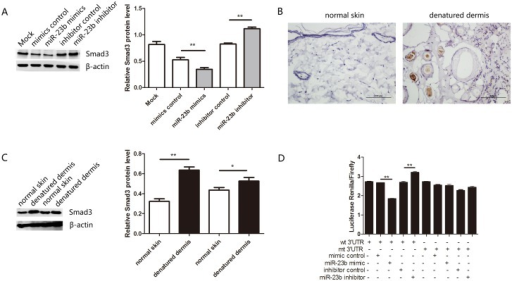 Smad3 is a direct target of miR-23b.(A) Western blotting analysis of Smad3 expression after transfection of miR-23b mimics, inhibitor and control in fibroblasts. (B) The intensity of Smad3 staining in denatured dermis of rats was examined by immunohistochemistry three days after burning. Brown-yellow granules in nucleus or cytoplasm were considered positive staining. Scale bar: 100um. (C) Western blotting analysis of Smad3 expression in normal skin and denatured dermis of rats. (D) Dual luciferase assays showed an increase after transfection of miR-23b inhibitor or a decrease after transfection of miR-23b mimics. *P < 0.05, **P < 0.01, mimics versus control, inhibitor versus control, and denatured dermis versus normal skin.