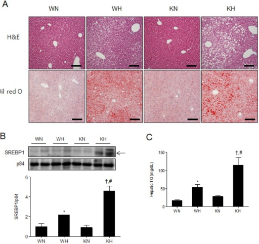 SIRT1 deletion aggravates hepatic steatosis in HFD-fed mice. (A) Histological analysis of hepatic fat accumulation by H&E and Oil Red O staining. Scale bar=100 µm. (B) Western blots of nuclear SREBP1 in liver homogenates from WT and KO mice fed an ND or HFD. Band intensity was normalized to nuclear p84 protein. (C) Hepatic TG levels in supernatant fractions of liver homogenates. Data are presented as mean±SEM. *p<0.05 for WH mice versus WN mice. †p<0.05 for KH mice versus KN mice. #p<0.05 for KH mice versus WH mice. WN, ND-fed WT mice; WH, HFD-fed WT mice; KN, ND-fed KO mice; KH, HFD-fed KO mice.