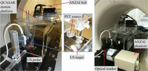 Experimental setup for ultrasound-based motion tracking with static US probe (left) and with the US probe being moved by the ANZAI respiratory phantom (right) (from the optical sensor's point of view). The setup was positioned on the patient table of the PET/CT scanner. The US target (rubber ball) and the rigidly attached PET 22Na point source were moved by the QUASAR motion platform. Motion was detected by the ANZAI breathing belt and the US probe in parallel.