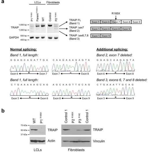 TRAIP mutations result in reduced cellular levels of TRAIP protein(a) The Arg185* mutation severely reduces TRAIP transcript levels in P1 and P2 patient cell lines. RT-PCR using primers in 5′ and 3′ UTR to amplify TRAIP transcripts in primary fibroblasts and lymphoblastoid cell lines (LCLs) demonstrates marked decrease in full length TRAIP transcript, consistent with nonsense-mediated decay. Additional low intensity PCR products are evident, that represent alternatively spliced transcripts, confirmed by subcloning and Sanger sequencing (lower panels). These include transcripts, which through omission of exon 7, or exons 6, 7 and 8, retain an open reading frame and result in protein products with small internal deletions. Loading control, GAPDH. (b) TRAIP protein levels are reduced in patients with Arg185* and the Arg18Cys mutations. Immunoblotting with an affinity purified rabbit anti-TRAIP antibody raised against recombinant TRAIP protein demonstrates reduced levels of the 53 kDa TRAIP protein in P3, and marked depletion in P1 and P2 where protein is only detectable on prolonged exposure (Supplementary Fig. 2). Loading controls, actin and vinculin.