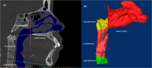 (a) The upper airway was divided into nasal cavity, nasoparynx, oropharynx, and hypopharynx and (b) 3D model of each section was reconstructed respectively.