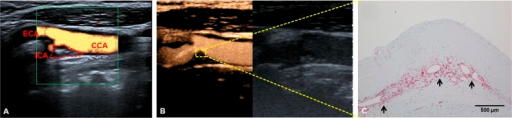 Contrast–enhanced ultrasound (CEUS) for assessing neo-vascularization of carotid plaque.(A) Color Doppler ultrasound of carotid bifurcation. The dotted area represents the stenotic carotid plaque. CCA: Common carotid artery. ICA: Internal carotid artery. ECA: External carotid artery. (B) CEUS of the same area as shown in A. Note yellow-orange color of the contrast agent filling the lumen of the carotid artery. Furthermore, CEUS contrast effects are visible within the carotid plaque (yellow square), indicating plaque neovascularization. (C) Immunohistological evaluation of the plaque area shown in B with anti-CD31 antibody staining. The arrows mark CD31-positive neovessels.