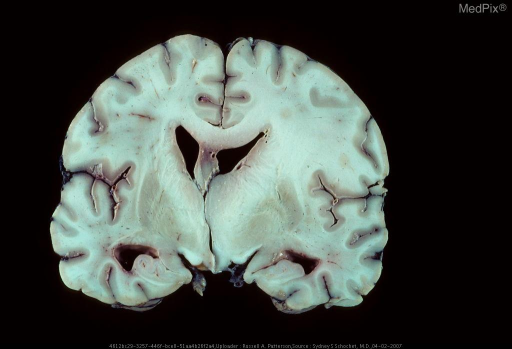 Diencephalic pilocytic astrocytoma