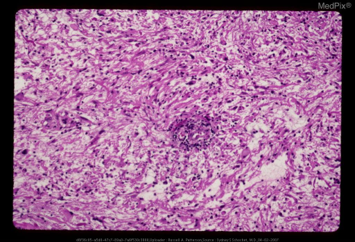 Frontal pilocytic astrocytoma