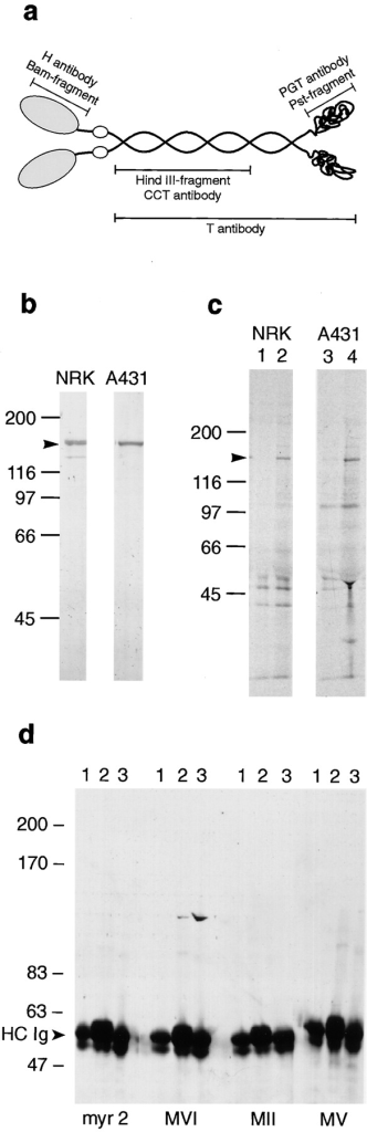 Specificity of the  myosin VI tail antibody  (PGT). (a) Schematic diagram of the structure of myosin VI showing the different  domains which were expressed in E. coli as GST-fusion proteins and used to  raise antibodies. A BamHI  fragment encoding aa 308– 631 of the head domain was  used to raise the H ab; a HindIII fragment of the myosin VI  tail encoding aa 742–1,030  was used to raise the CCT ab,  a PstI fragment encoding the  COOH-terminal globular tail  was used to raise the PGT ab  and an ab was raised against  the whole tail (T ab) encoding aa 846–1,254. (b) Immunoblot of whole cell extracts  of NRK and A431 cells showing the specificity of the affinity purified PGT ab. (c) Immunoprecipitation of myosin  VI from [35S]methionine/ cysteine-labeled NRK and  A431 cells. Lanes 1 and 3  show immunoprecipitations  using the preimmune serum,  whereas for lanes 2 and 4, 10  μg of the affinity purified  PGT ab was used. (d) Immunoblot of immunoprecipitations from A431 cells of myosin VI probed with antibodies  to different myosins. Lane 1,  immunoprecipitation using the preimmune serum; lane 2, with  the tail ab (PGT) to myosin VI; lane 3, with the tail ab (T) to myosin VI. The immunoprecipitates were blotted onto nitrocellulose and probed with the polyclonal antibodies to myosin I  (myr2), myosin VI (MVI), myosin II (MII), and myosin V (MV).
