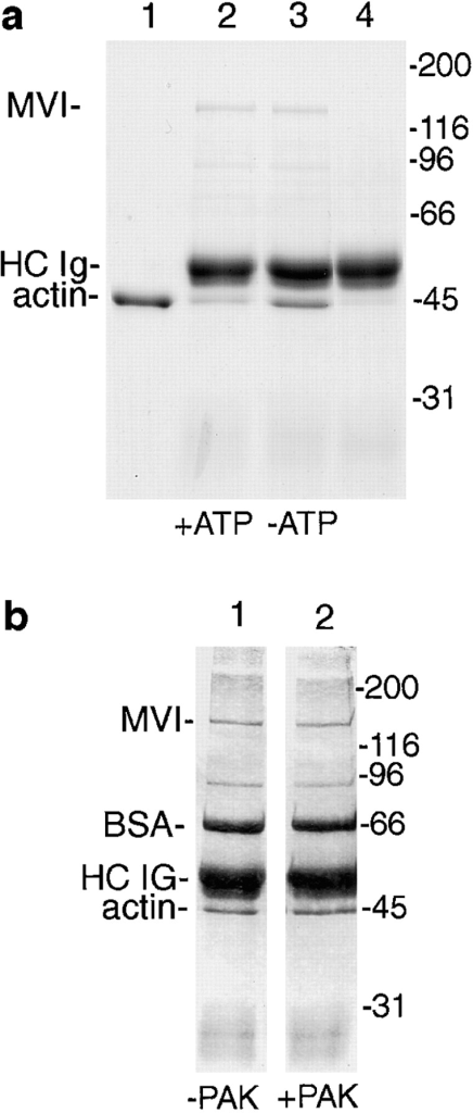 Binding of myosin VI to  actin filaments. Myosin VI was immunoprecipitated from A431 cells  under native conditions (a) and incubated with 10 μM of F-actin in  the presence (lane 2) or absence  (lane 3) of 2.5 mM MgATP. The  immunobeads containing bound  myosin VI were briefly centrifuged  and washed with or without  MgATP to remove nonbound actin.  The washed beads were run on  SDS-PAGE and stained with Coomassie blue. Lane 1 shows actin  alone and lane 4 an immunoprecipitation with preimmune serum incubated with actin. In b the immunoprecipitated myosin VI was  incubated with (lane 2) or without  (lane 1) recombinant PAK before  assessing binding to actin filaments  under the same conditions as described in a.