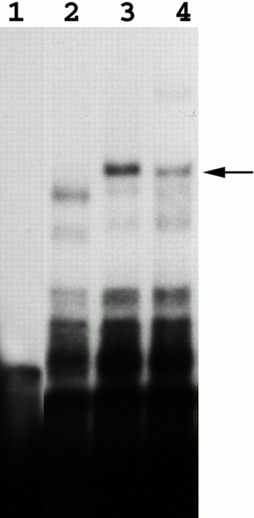 The formation of the specific RNA–protein complex is dependent on Loc1p. Band mobility shift assays were performed as mentioned in the legend to Fig. 1. Lane 1, E3 RNA probe only, no protein extract. Lanes 2 and 3, E3 transcripts were incubated with yeast extracts of YLM090 (loc1) and K699 (wild-type) strains. Lane 4, E3 transcripts incubated with extracts of YLM090 (loc1) complemented with a LOC1-myc plasmid.