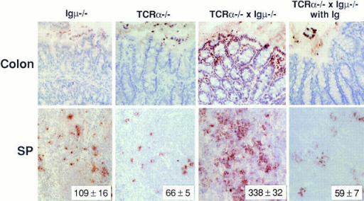Apoptotic cells in the colon (top) and spleen (bottom) of Igμ−/−, TCR-α−/−, and TCR-α−/− × Igμ−/− mice injected with PBS or Ig purified from sera of TCR-α−/− mice were detected by TUNEL assay (×20 objective). All mice were 8 wk of age. The numbers in the right lower corner  indicate the number of apoptotic cells per mm2.