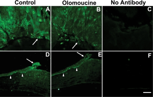 Olomoucine treatment decreased localization of MMP-2 protein at the wound edge. A: MMP-2 immunofluorescence is elevated at the wound edge in untreated control corneas. B: The immunostaining of MMP-2 at the wound edge (arrow) is reduced in olomoucine-treated corneas. C: Whole mounted corneas without primary antibody showed no immunofluorescence. D: Paraffin sections of wounded control corneas showed MMP-2 immunofluorescence in all layers of the cornea at wound edge (arrow) and in basal epithelial cells distal to the wound (arrowhead). E: The paraffin section of olomoucine-treated cornea showed reduced immunofluorescence of MMP-2 at the wound edge (arrow). MMP-2 immunofluorescence persisted in the basal layers of epithelium (arrowhead). F: No immunostaining was detected in the paraffin section of the cornea when primary MMP-2 antibody was omitted. Scale bar=100 μM.