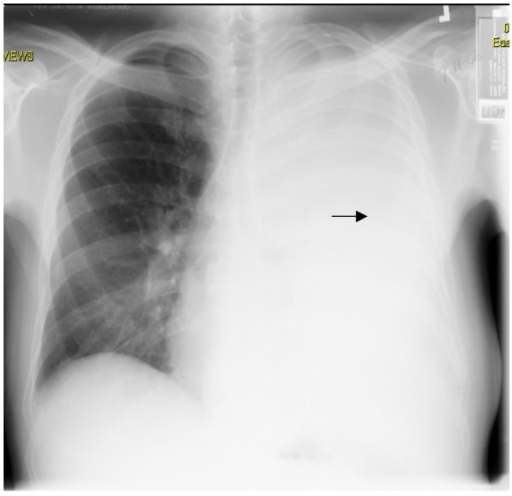 Chest X-ray (PA view): Re-accumulation of massive left ...