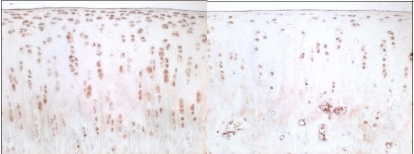 Immunohistochemical staining of VEGF, 3 weeks after sham operation (left side) and 3 weeks after resection of the anterior cruciate ligament (right side).