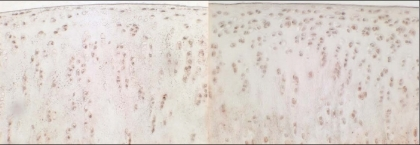Immunohistochemical staining of VEGF, 12 weeks after sham operation (left side) and 12 weeks after resection of the anterior cruciate ligament (right side).