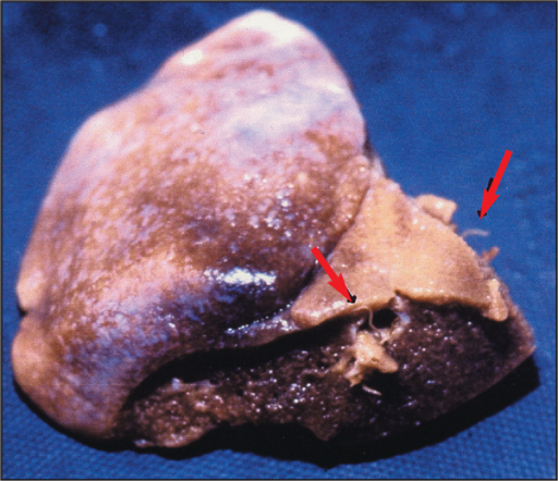Adult Angiostrongylus vasorum (arrows) within pulmonary vessels of formalin-fixed lung.