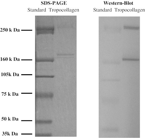 SDS-PAGE and Western blot analysis of isolated skin tropocollagen fractions. Type I, III and VII collagen were identified using Western blot, and the purity of extracted collagen was confirmed. sd Standard protein, and TP tropocollagen