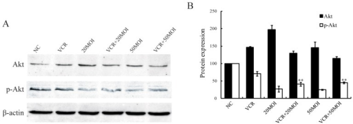 The expression patterns of Akt and phospho-Akt in HXO-RB44 cells after different treatments for 48 h. (A) The proteins were analyzed by immunoblot with specific antibodies; (B) Average band density of quantified Akt and phospho-Akt protein after normalization to the internal control β-actin. Protein expression of Akt and phospho-Akt in the NC group was arbitrarily set as 100. ** p < 0.01 relative to phospho-Akt protein expression in the 5 nM VCR-treated group. NC (negative control): treatment with PBS.