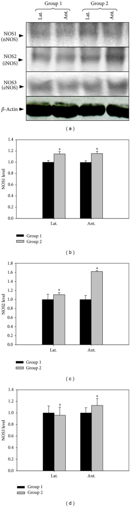 The Effect Of 5 Alpha Reductase Inhibitor On Expressions Of Nnos Inos And