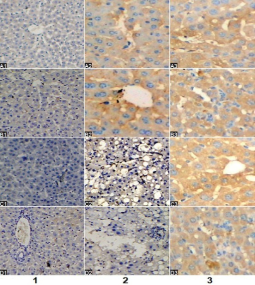 Expressions of Smad3 (A1-3), TGF-β1 (B1-3), α-SMA (C1-3), TIMP-1 (D1-3) in liver tissue (×200). Lane 1, rats in control group; Lane 2: rats in the treatment group (Huisheng oral solution); Lane 3: rats in model group (normal saline+CCl4). Considerable expression of Smad3 protein was observed among the periportal fibrotic areas, central vein, and fibrous septa in model group (A3) compared with normal group (A1). Huisheng oral solution treatment reduced the expression of Smad3 compared with the model group (A2). The expression of TGF-β1, α-SMA and TIMP-1 was consistent with Smad3