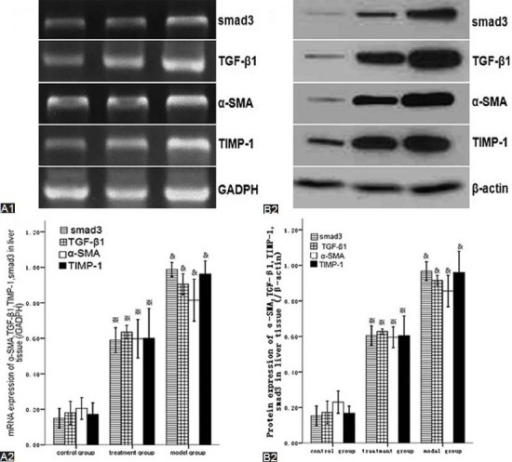 Huisheng oral solution decreased the mRNA (A1, A2) and protein (B1, B2) expressions of Smad3, TGF-β1, α-SMA and TIMP-1 in liver tissue. The mRNA and protein levels of Smad3, TGF-β1, α-SMA and TIMP-1 in liver tissue were showed by qPCR (A1) and western blot (B1), respectively. Their relative expressions were respectively normalized to those of GADPH (A2) and β-actin (B2), respectively. *P <0.05 compared with the control group; *P <0.05 compared with the model group.