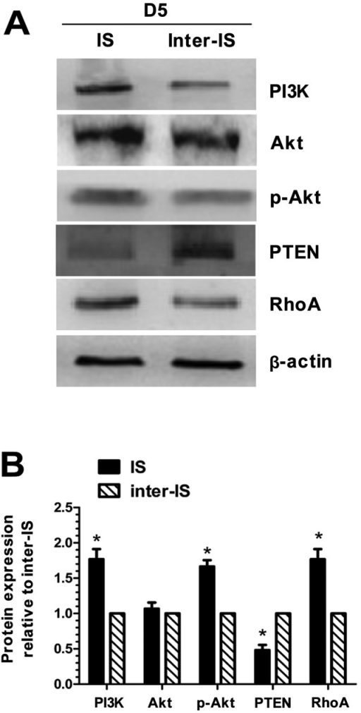 Western blot analysis of the protein expression levels of PI3K, Akt, p-Akt, PTEN and RhoA at the implantation site and inter-implantation site in the endometrium. (A) Western blot analysis electrophoresis graph. (B) Relative densitometric analysis of these proteins between the implantation site and the inter-implantation site. A single representative experiment is shown. The experiment was performed 3 times. Three mice were used in each experiment. The analysis was performed on day 5. *P<0.05 indicates statistical significance between the implantation site and inter-implantation site in the endometrium. IS, implantation site; inter-IS, inter-implantation site.