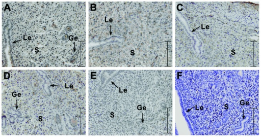 Immunohistochemical analysis of the expression of PI3K, Akt, p-Akt, PTEN and RhoA at the implantation site in the group injected with the PI3K inhibitor in the uterus of pregnancy mice on day 5. Yellow-brown color represents positive staining. (A) Representative image of PI3K; (B) representative image of Akt; (C) representative image of p-Akt; (D) representative image of PTEN; (E) representative image of RhoA. The experiment was performed 3 times. Three mice were used in each experiment. Le, luminal epithelium; ge, glandular epithelium; s, stromal cells; bar, 125 μm.